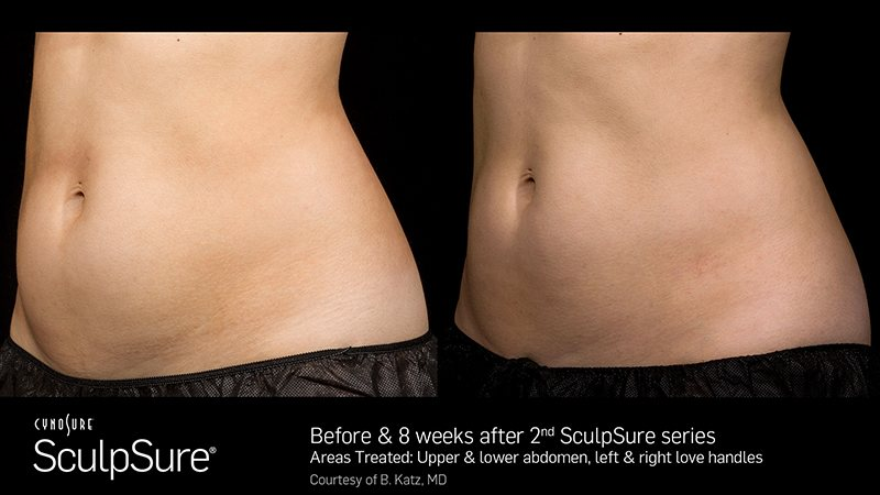 , WarmSculpting by SculpSure