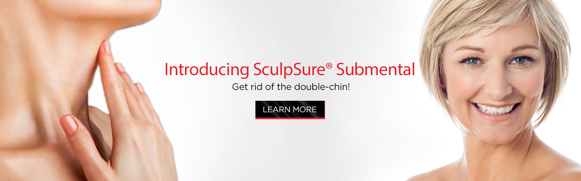 sculpsure-submental